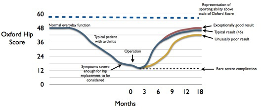 "Graph showing functional ""Oxford Hip Score"" for patients having hip replacement surgery"