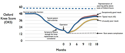 "Graph showing functional ""Oxford Knee Score"" for patients having knee replacement surgery"